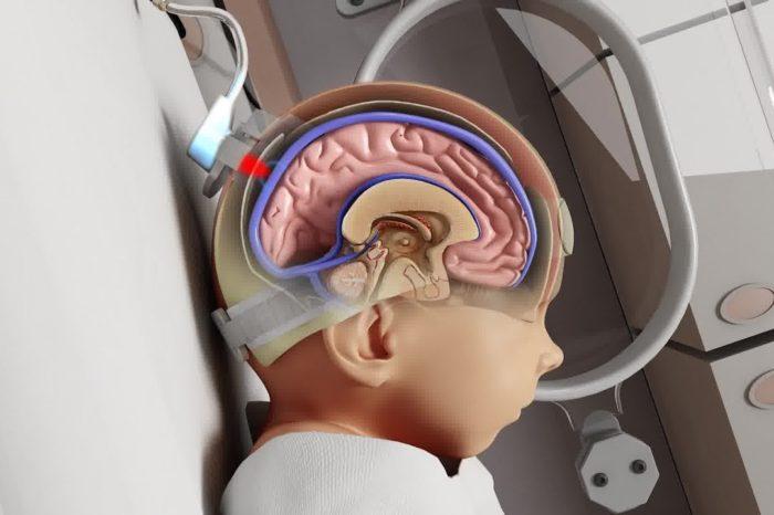 Noninvasix joins leading California-based pediatric device consortium